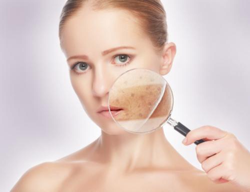 Macchie della pelle, come eliminare gli inestetismi
