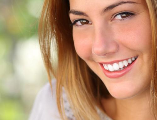 L'estetica del sorriso